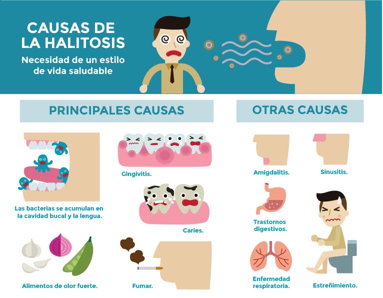 infografia de causas de la halitosis