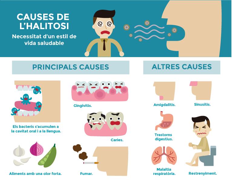 Infografia de causes de l'halitosi