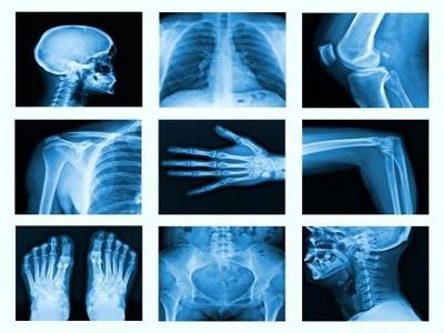 radiologia rx